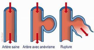 thelancet #anévrismeaortique #réparationendovasculaire ...