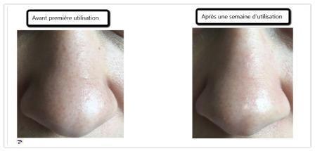 J'ai testé pour vous le Micro Peeling Sensation (gant/serviette): -10% grâce au bon de réduction SUMMUM