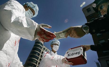 Vendez vos organes pour arrondir vos fins de mois !