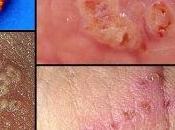 obat herpes bumil
