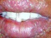 obat herpes bibir