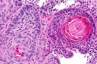 #thelancetoncology #carcinome #trastuzumabderuxtecan #activitéantitumorale Innocuité, pharmacocinétique, et activité antitumorale du trastuzumab deruxtecan (DS-8201), un conjugué d'anticorps-médicament ciblant HER2, chez des patients atteints de tumeur...