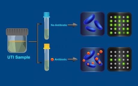 ANTIBIORÉSISTANCE : Le test rapide qui révèle les bactéries rebelles