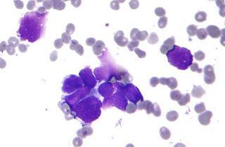 #thelancetoncology #inhibiteurdelatyrosinekinase #lorlatinib #crizotinib Lorlatinib dans le cancer du poumon non à petites cellules avec réarrangements ALK et ROS1 : premier essai de phase 1 chez l'homme, multicentrique international ouvert