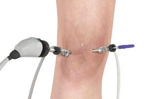 Intérêt du lavage articulaire dans l'arthrose du genou