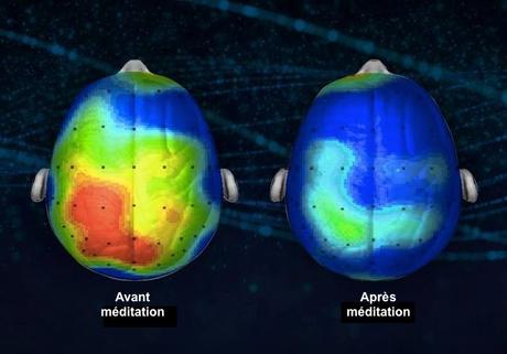 Méditer Pour Ne Plus Stresser