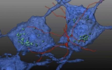 TROUBLES NEUROMUSCULAIRES : L'espoir des greffes de cellules souches hématopoïétiques