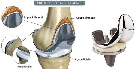Arthrose du genou : quand faut-il penser à opérer ?