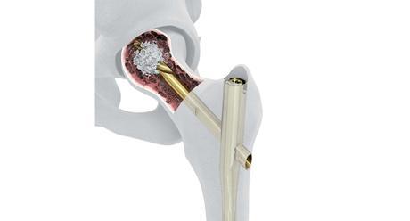 DePuy Synthes lance le TFNA Augmentation System pour les fractures de hanche avec ostéoporose