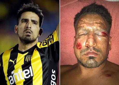 Quand un joueur de foot argentin se blesse au visage lors d'un feu d'artifice