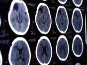 techniques spectaculaires restaurent flux sanguin vers cerveau