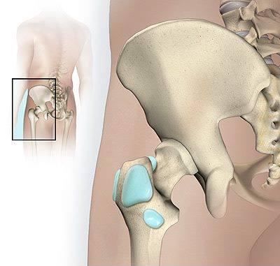 La bursite : causes, symptômes et traitement
