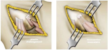 Épicondylite latérale : traitement médical et chirurgical