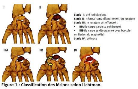L'ostéotomie accourcissante du radius dans la maladie de Kienböck aux stades IIIa et IIIb de Lichtman.