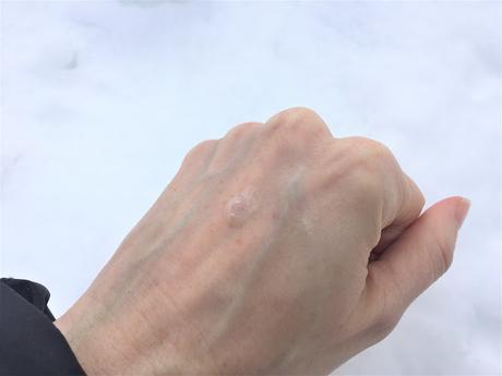 Une peau toute fraîche avec Hyalurides LP du Dr Pierre Ricaud