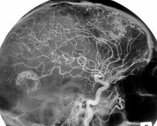 #thelancetoncology #mélanome #métastasescérébrales #nivolumab #ipilimumab Cocktail nivolumab + ipilimumab ou nivolumab seul pour le traitement des métastases cérébrales : essai multicentrique randomisé de phase 2