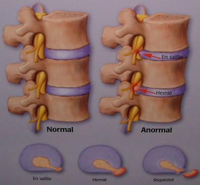 symptôme d'une hernie discale