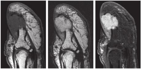 Tumeur glomique de la main : douleur insoutenable de l'ongle