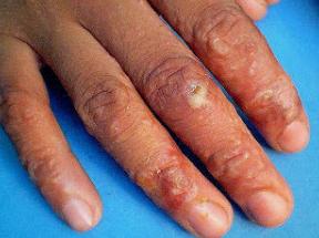 obat herpes pada tangan
