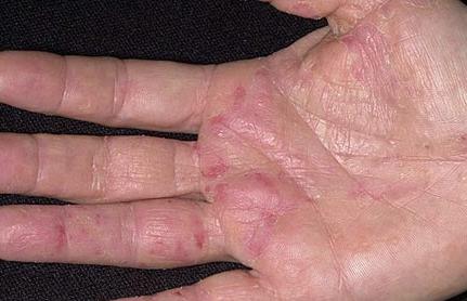 obat penyakit herpes di tangan