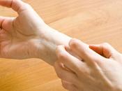 obat alami herpes tangan