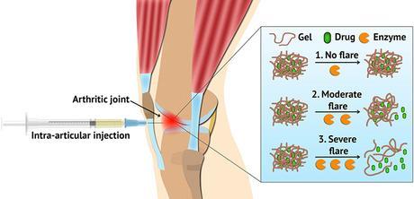 Un hydrogel révolutionnaire pour gérer les poussées de l'arthrite inflammatoire