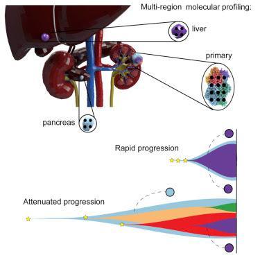 #Cell #carcinomerénal #métatstases Le suivi de l'évolution du cancer révèle les voies restreintes des métastases : TRACERx Renal