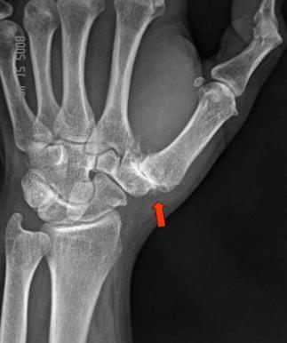 Rhizarthrose : Arthrose de la base du pouce