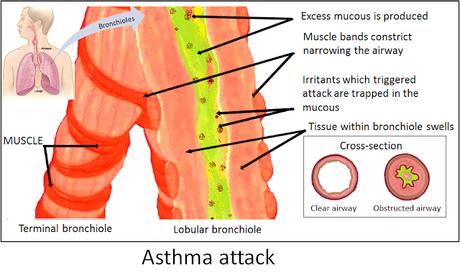 #thelancetrespiratorymedicine #asthme #interleukine13 #tralokinumab #corticostéroïde Effet du tralokinumab, un anticorps monoclonal neutralisant l'interleukine-13, sur l'inflammation éosinophilique des voies aériennes dans l'asthme modéré à sévère non-...
