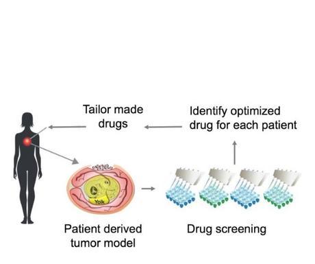 CANCER et traitement personnalisé : Une tumeur dans un œuf de poule