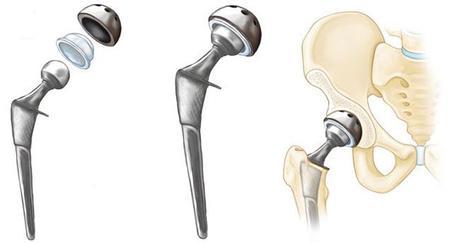 Luxation de la prothèse totale de hanche (PTH)