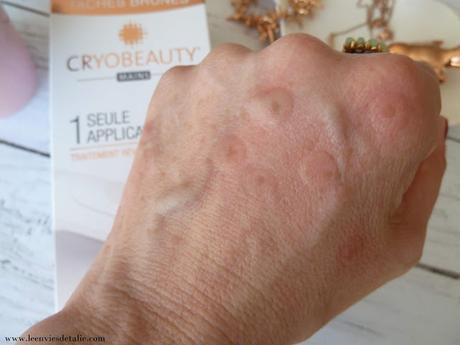 En finir avec les taches brunes avec Cryobeauty mains