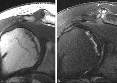 Ostéonécrose de la tête humérale : causes, signes, traitement
