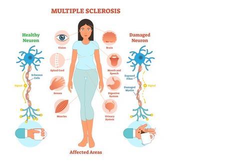 Ces signes recensés sont perceptibles des années avant l'apparition des premiers symptômes reconnus de la SEP correspondent à un risque multiplié par 4 de développer des troubles du système nerveux