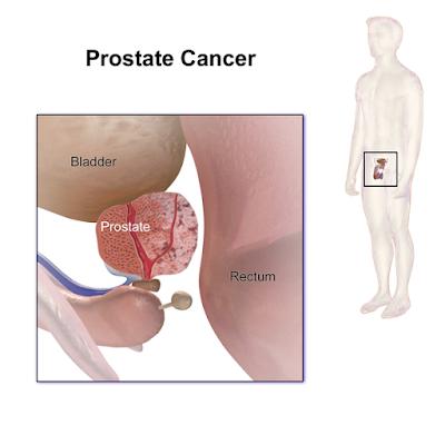 #thelancetoncology #cancerdelaprostate #déprivationandrogénique #apalutamide Effet de l'apalutamide sur la qualité de vie liée à la santé chez les patients atteints d'un cancer de la prostate non métastasé résistant à la castration : analyse de l'essai...