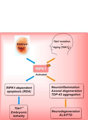 VIEILLISSEMENT et NEURODÉGÉNÉRESCENCE : Un lien moléculaire identifié, des traitements en vue