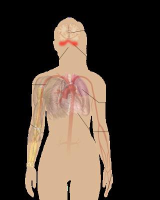 #thelancet #lupusérythémateuxsystémique #ustekinumab Efficacité et sécurité de l'ustekinumab, un inhibiteur IL-12 et IL-23, chez des patients atteints de lupus érythémateux systémique : résultats d'une étude de phase 2 multicentrique randomisée en doub...