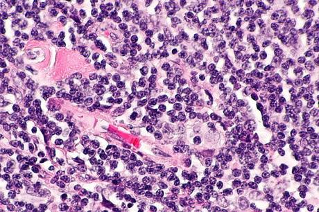 #thelancetoncology #lymphomefolliculaire #immunochimiothérapie Valeur pronostique de la réponse de fin d'induction mesurée par TEP après immunochimiothérapie de première ligne pour traitement d'un lymphome folliculaire (GALLIUM) : analyse secondaire d'...
