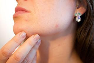Comment prévenir l'acné et avoir une peau saine ?
