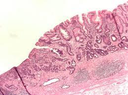 #thelancetoncology #cancergastrique #trifluridine #tipiracil Trifluridine/tipiracil versus placebo chez des patients préalablement lourdement traités pour un cancer gastrique métastasé (TAGS) : essai de phase 3 randomisé, en double-aveugle, contrôlé pa...
