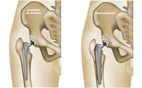 Changer la prothèse de hanche après un descellement
