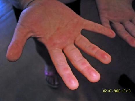 bout des doigts rouges