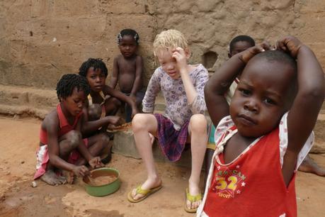 172391-les-enfants-albinos-sont-les-plus-exposes-aux-accusations-avec-les-orphelins-et-les-enfants-handicap