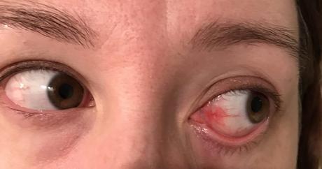 Mes yeux… partie 1 de 3