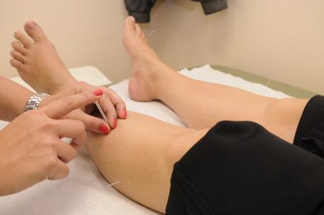 Acupuncture : une médecine pour se soigner naturellement et sans médicaments