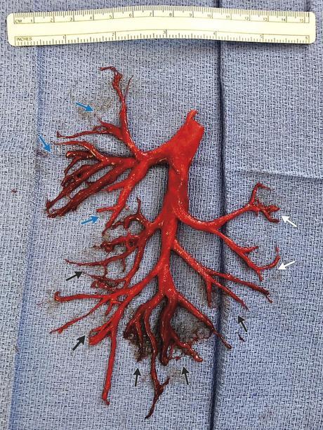Un patient de 36 ans a toussé un caillot sanguin qui a moulé exactement la bronche droite de son poumon