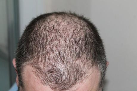 La greffe de cheveux et le traitement des cellules souches en Turquie