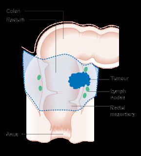 #eclinicalmedicine #cancerdurectum #chimioradiothérapie Comparaison des résultats suite à un traitement néoadjuvant total et suivant une chimio-radiothérapie néoadjuvante totale chez des patients atteints de cancer du rectum localement avancé