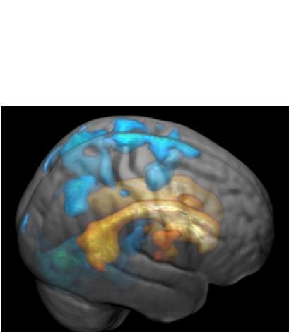 Ces marques blanches se propagent à la surface du cerveau et augmentent en volume