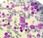 #EClinicalMedicine #néoplasmemyéloprolifératif #inflammation Polymorphisme induisant perte fonction diminue risque mutation somatique JAK2V617F néoplasme myéloprolifératif étude randomisation mendélienne